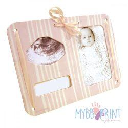 MybbPrint 3 az 1-ben képkeret rózsaszínben - ultrahang kép, fénykép és kórházi karkötő tartó