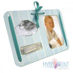 MybbPrint 3 az 1-ben képkeret világoskék színben - ultrahang kép, fénykép és kórházi karkötő tartó